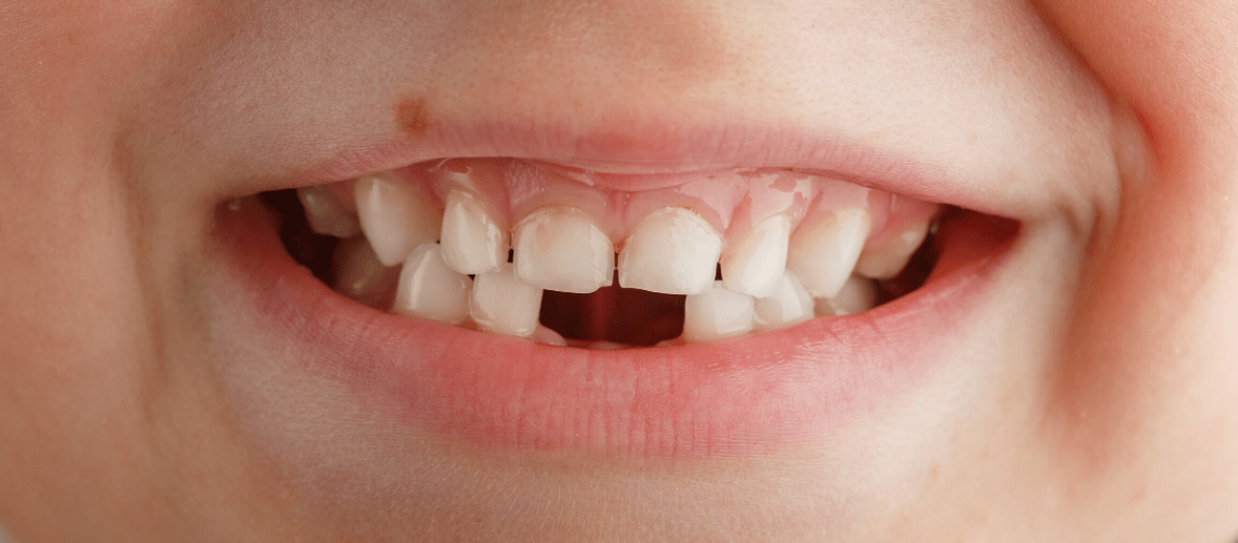 agenesia-dental-tratamientos-comparativa